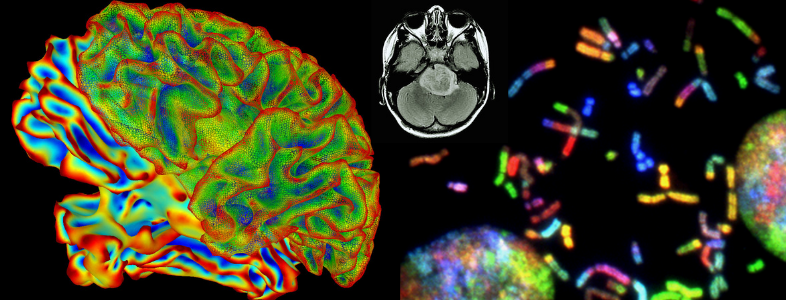 Composite of National Institutes of Health depictions of brain and brain tumor imaging